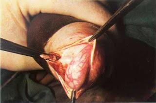 Teknik Operasi Kastrasi pada Hewan (Bedah Genitalia)