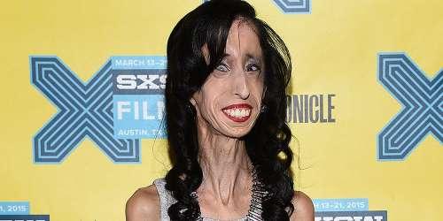 Nació con una rara condición y fue llamada como la mujer más fea del mundo
