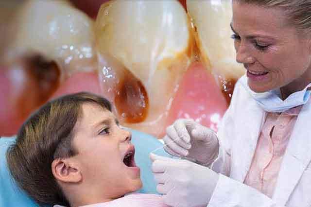 Cara Efektif Cegah Gigi Dari Karies Dengan Siwak Wow Info Keren