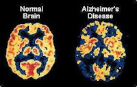 Who are littered with Alzheimer's disease?