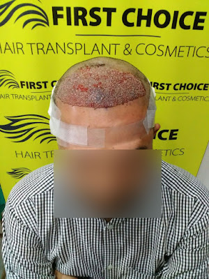 hair transplant result picture