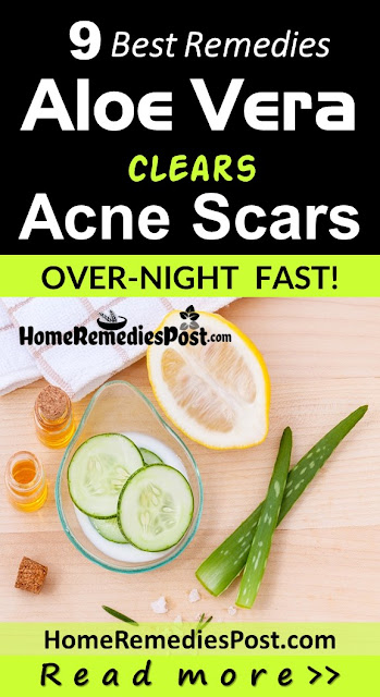 Aloe Vera For Acne Scars, Aloe Vera Acne Scars, Is Aloe Vera Good For Acne Scars, How To Use Aloe Vera For Acne Scars, Aloe Vera And Acne Scars, How To Get Rid Of Acne Scars, How To Get Rid Of Acne Scars Fast,