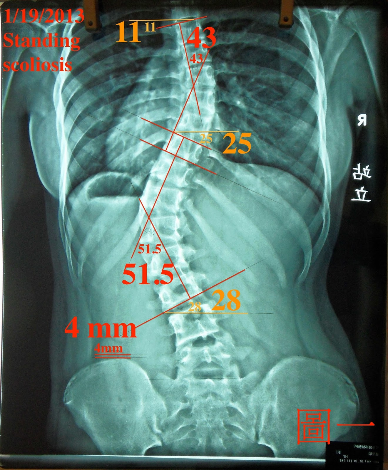 脊椎側彎個案報告二-一個月9度後續追蹤二(10個月21.5度) - 閻曉華脊骨神經醫學網