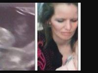 Wanita Ini Terkejut Hantu Ibunya Muncul Di USG