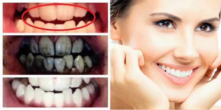 Terungkap Inilah 9 Cara Alami Supaya Gigi Putih Mengkilap Bak