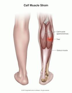 Muscle Strain Icd 10