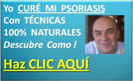 Interior el tratamiento de la psoriasis