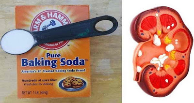 Heal The Kidneys With The Help Of Baking Soda