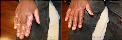 oziljci na prstima