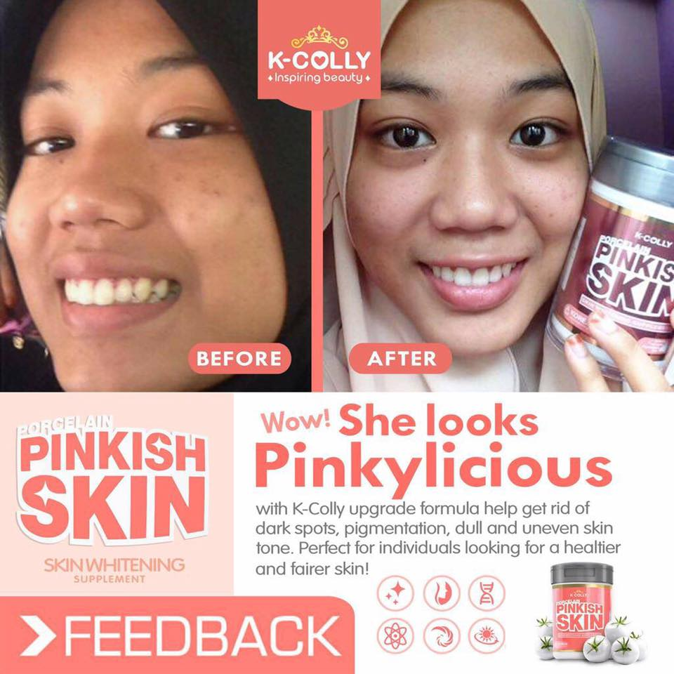 K COLLY PORCELAIN PINKISH SKIN Solehah Beauty Centre