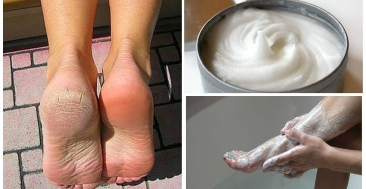 Remove All The Calluses And The Feet Of The Feet With This Home Remedy