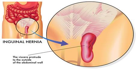 bahaya hernia jika tidak di operasi