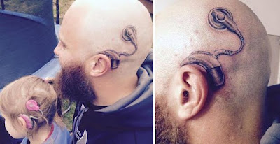 foto 1 de se tatúa el implante que le pusieron a su hija