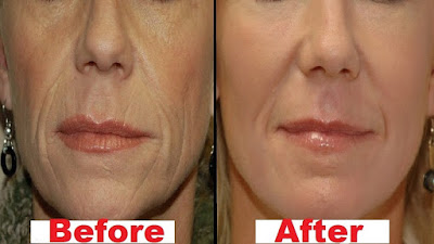 Get Rid Of Wrinkles Around The Mouth. Homemade Cream | Wellness Food Team