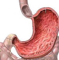 LinitisPlastica Symptoms, Causes, Radiology, Survival rate