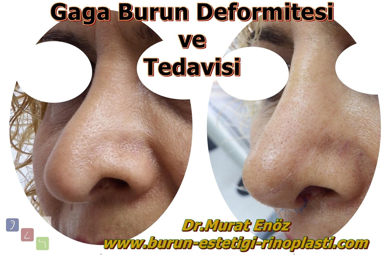 Gaga Burun Deformitesi (Pollybeak Deformity)