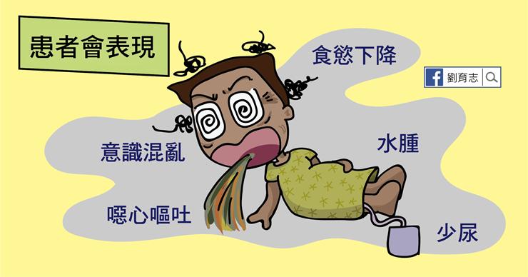為何要緊急洗腎?急性腎衰竭的原因及癥狀(懶人包) - 照護線上