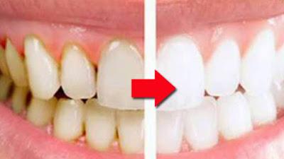 Tips Mudah dan Sederhana Menghilangkan Karang Gigi