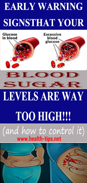 11 High Blood Sugar Signs and Symptoms to Watch Out For#NATURALREMEDIES