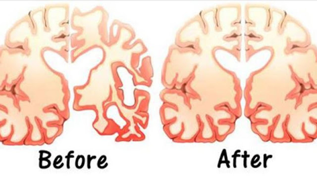 Man Eats 2 Tbs of Coconut Oil Twice a Day for 60 Days and This Happens to His Brain!  Brain