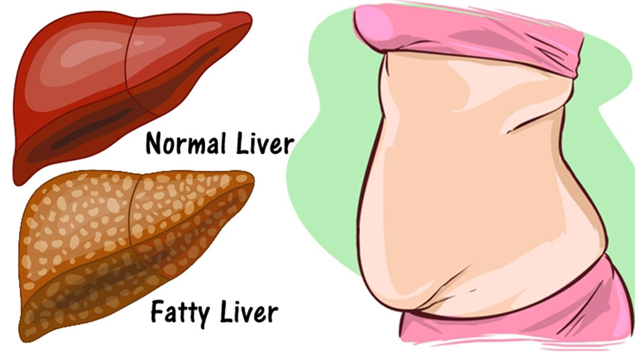 16 Signs That Your Liver Is Full Of Toxins That Will Make You Fat