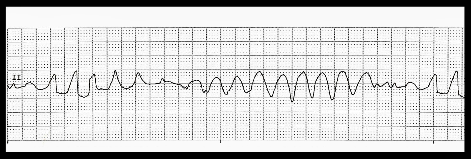 Float Nurse: Practice EKG Strips 318