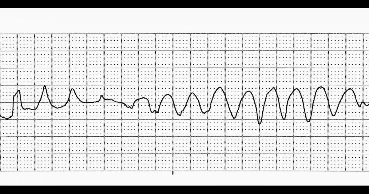 Float Nurse: Practice EKG Strips 318