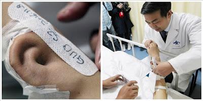 Επαναστατική χειρουργική επέμβαση: Το αυτί του μεγαλώνει στο χέρι του