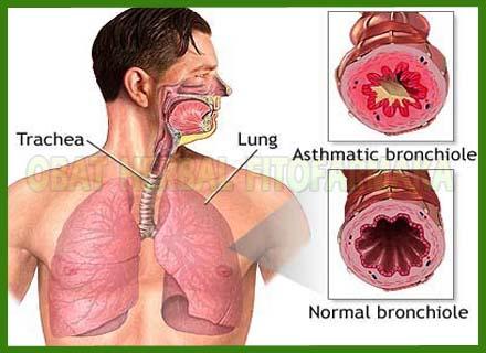 pernafasan normal, pernafasan tidak normal, radang pernafasan