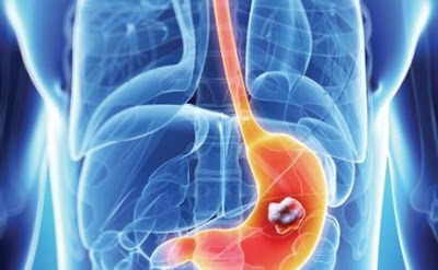 Facts About Stage 4 Stomach Cancer