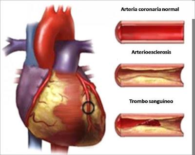 Penyumbatan di jantung bisa sembuh