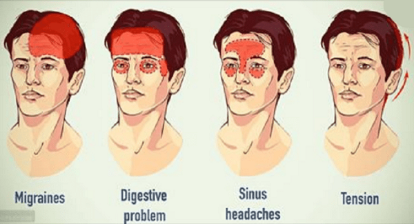 Difference Between Migraine and Sinus Headaches