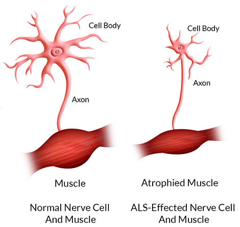 This is what happen to nerve cell and muscle