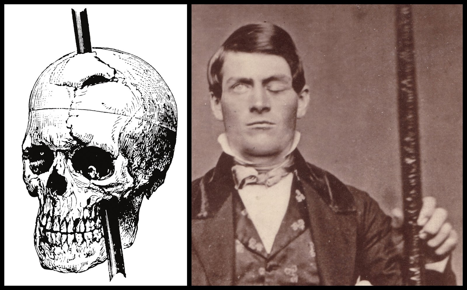Phineas Gage, including his doctor's depiction of his injury, from ...