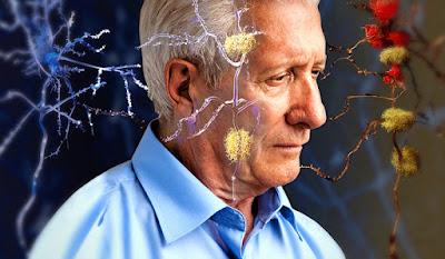 pengobatan penyakit alzheimer