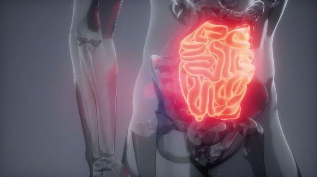 Analizan sobrevida de cánceres digestivos en Chile