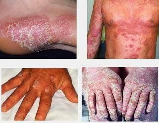 cara mengatasi gatal kulit menahun paling ampuh