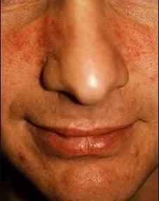 Obat Eksim Untuk Penyakit Eksim Pada Hidung
