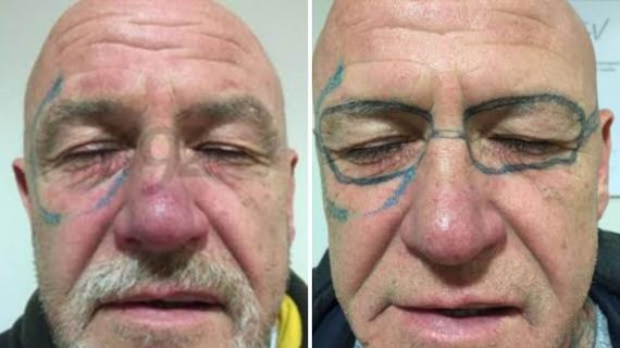 Lol. Drunken man wakes up to see a pair of glasses tattooed on his face (photos)