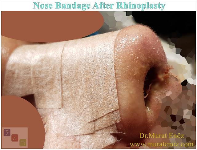 External Nasal Splint (Nasal Cast) - What Is External Nasal Splint? - Why External Nose Splints Are Used? - External Nasal Splint Prices - How to Place an External Nasal Splint? - External Thermoplastic Splints - How to Remove an External Nasal Splint? - When External Nasal Splints Are Removed After Rhinoplasty? - External Nose Splint Can Fall Off! - When Does An External Nose Splint Take Off? - When is The Bandage Removed After Nose Surgery? - How to Clean the Nasal Skin After Removing the External Nasal Splint?