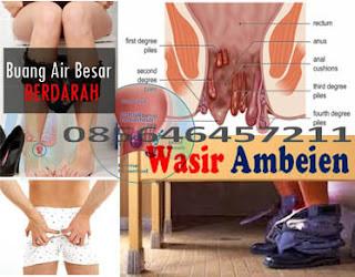 Obat Wasir (Hemoroid) Murah Terbukti Ampuh