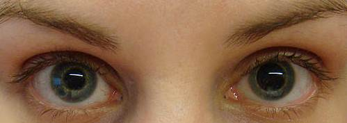 What do your eyes do when u have a concussion