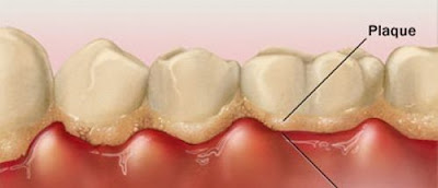 Quy trình cạo vôi răng tại nha khoa