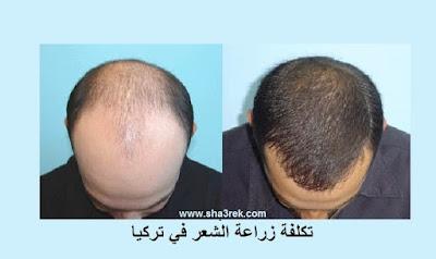بعض المعلومات عن زراعة الشعر في تركيا للرجال والنساء ؟