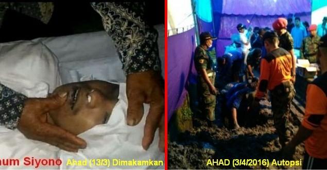 autopsi jenazah siyono korban kebrutalan densus 88