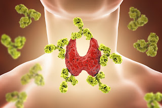 tiroidita limfocitara subacuta