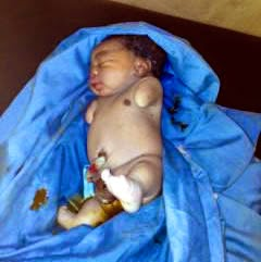 Photo: Woman gives birth to baby without arms in Ogun, husband runs