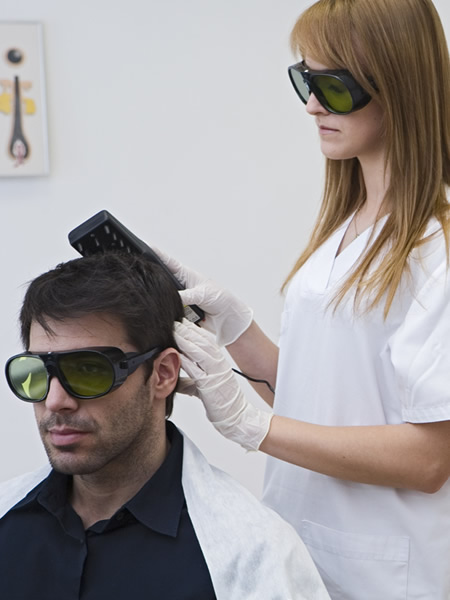 Láser para prevenir la alopecia de Svenson