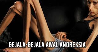 Mari kenali anoreksia lebih jauh