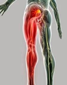 próstata y piernas pesadas y dolor de espalda sordo